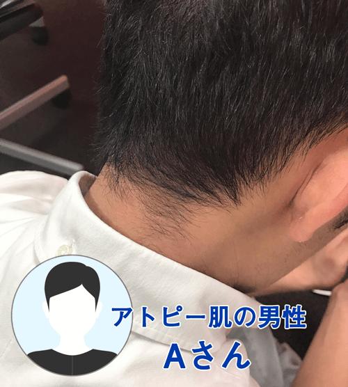 アトピー敏感肌の男性A