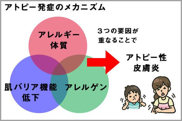 アトピーを発症するメカニズム(3つの要因)