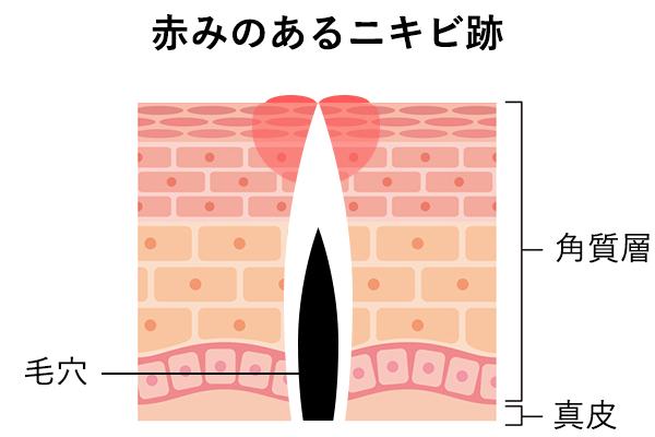 赤みのあるニキビ跡の肌内部の様子