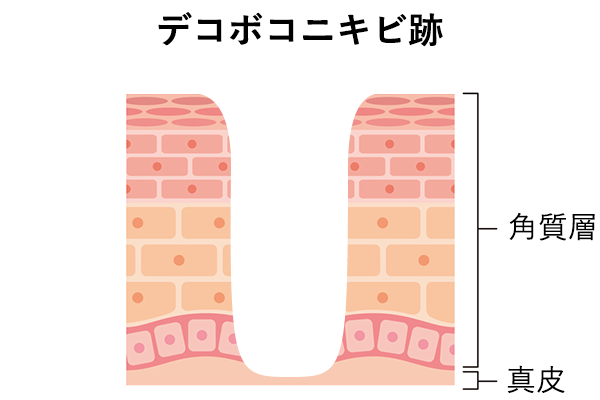 クレーターのようなデコボコニキビ跡の肌内部の様子