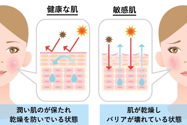 健康な肌と敏感肌の肌バリア機能の違い