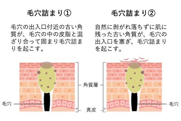 ニキビの原因となる毛穴詰まりを起こした肌内部の様子