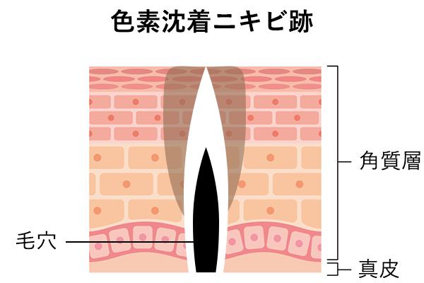 色素沈着ニキビ跡の肌内部の様子