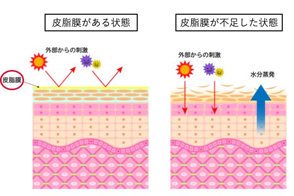 春の花粉症による肌荒れが起こっている肌の状態