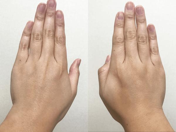 米肌の美白トライアルセットの使用後の肌の比較