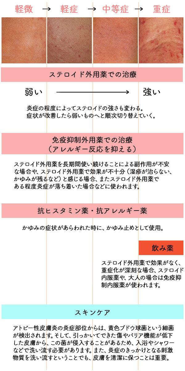 アトピー性皮膚炎の重症化の程度と治療法