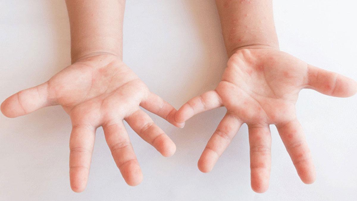 子供の手や口に水ぶくれは「手足口病」かも!大人の感染も要注意!
