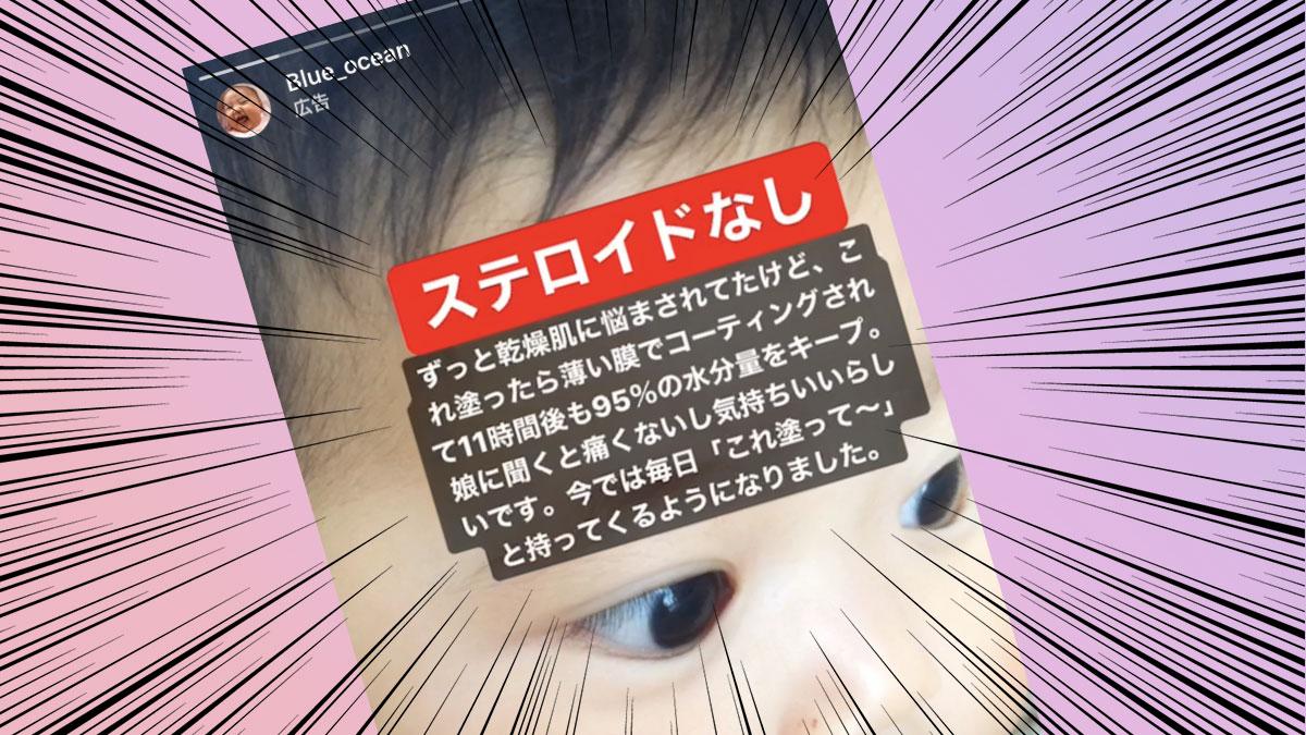 【アトピーで脱ステ?】インスタの過剰広告にダマされないで!!
